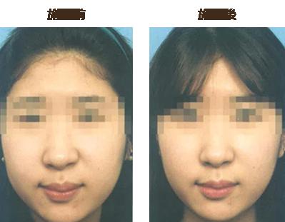 脂肪溶解注射 顔