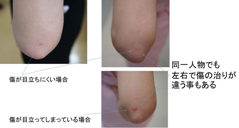 二の腕 傷