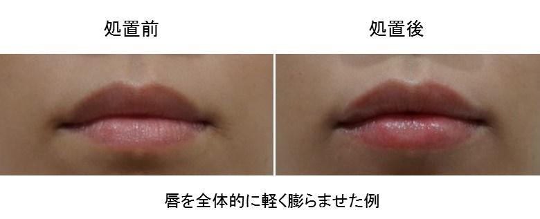 唇 ヒアルロン酸