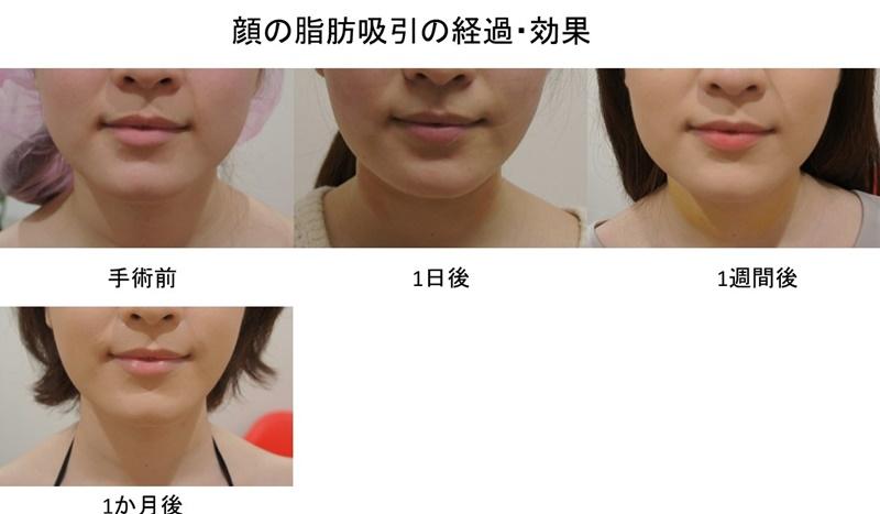 顔 ダウンタイム経過 写真