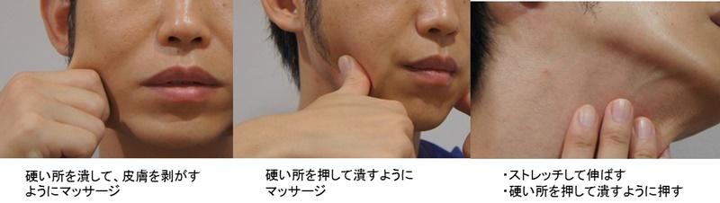 顎 脂肪吸引 マッサージ
