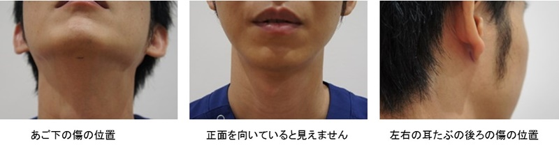 顎 脂肪吸引 傷4