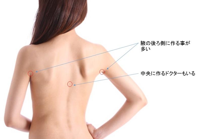 背中 脂肪吸引 傷