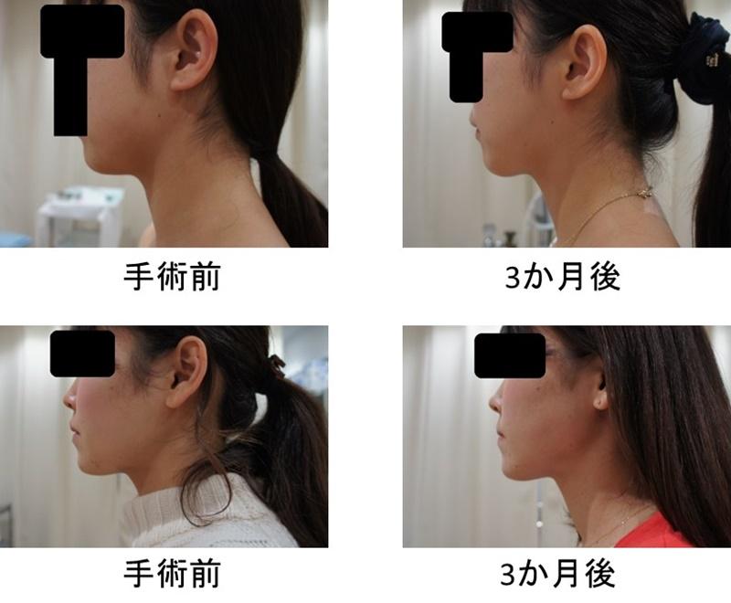 顎 脂肪吸引2