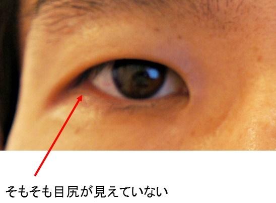 目尻切開2