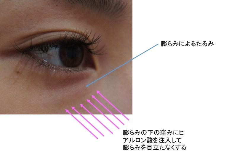 目の下のたるみ ヒアルロン酸