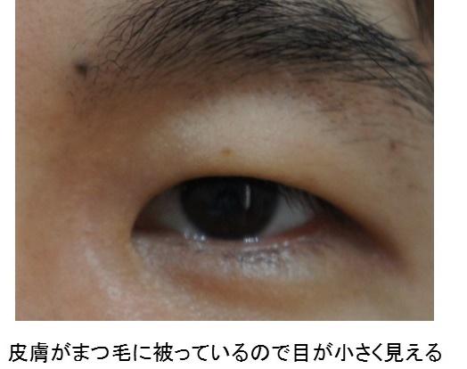 眼瞼下垂 保険1