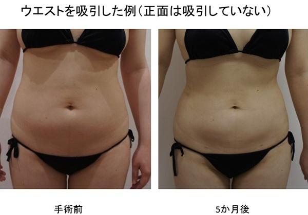 お腹脂肪吸引 3