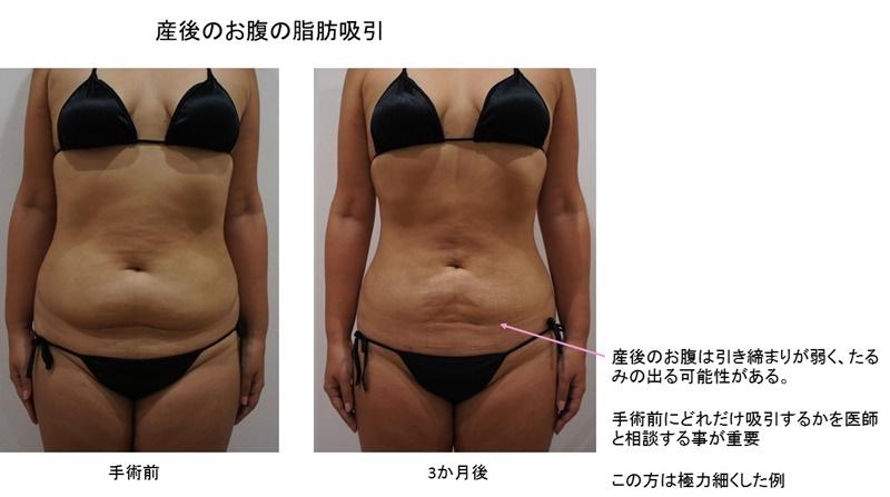 お腹脂肪吸引 2