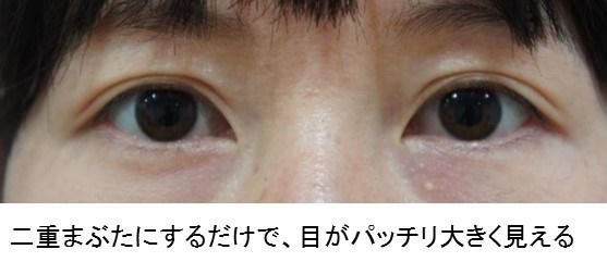 切らない眼瞼下垂 6
