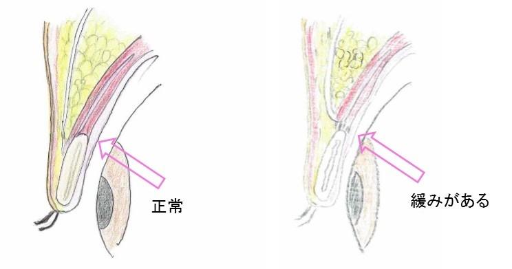 眼瞼下垂 保険 2
