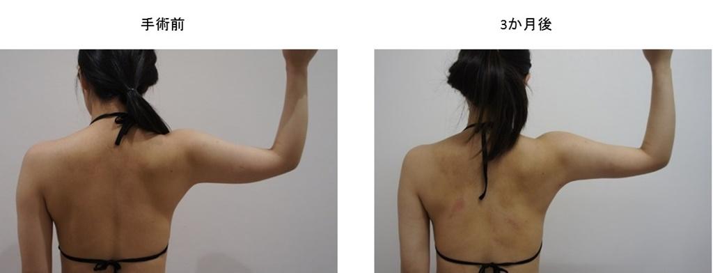 症例写真集4-4