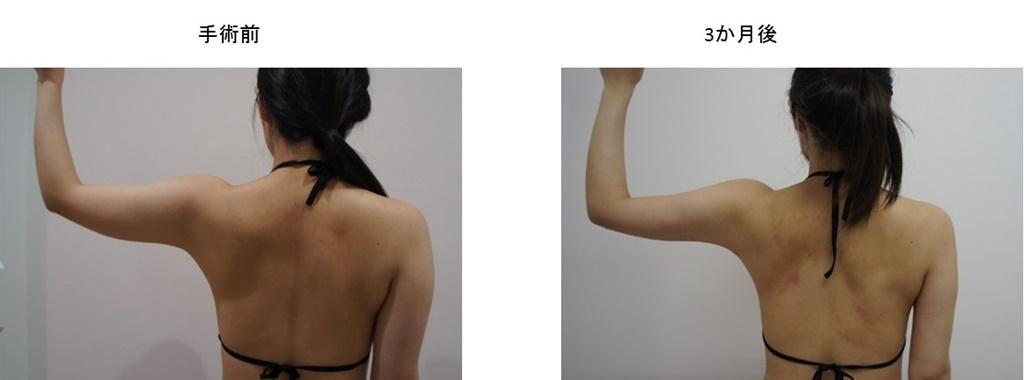 症例写真集4-3