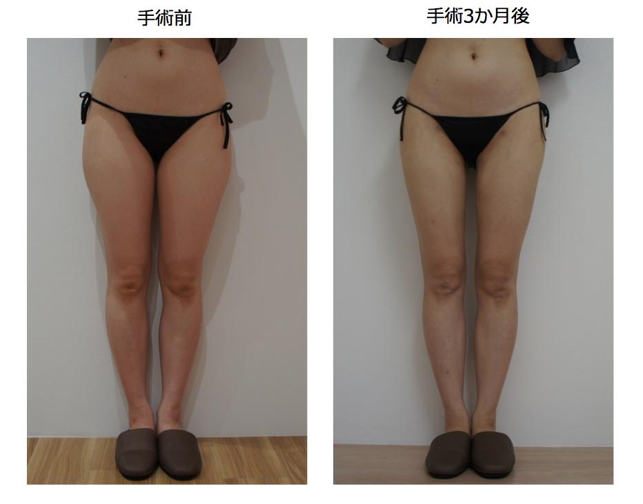 front_leg