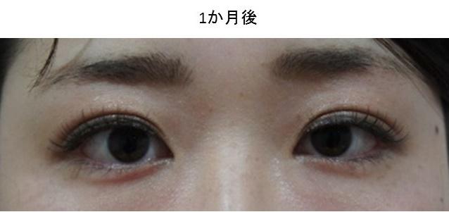 症例写真集10-2