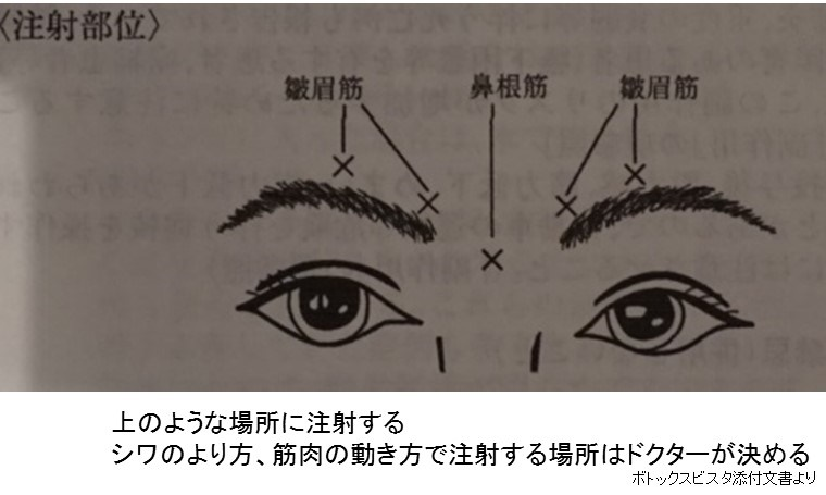 眉間 ボトックス1