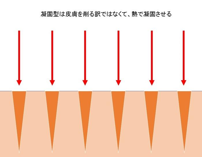 ニキビ レーザー 凝固型