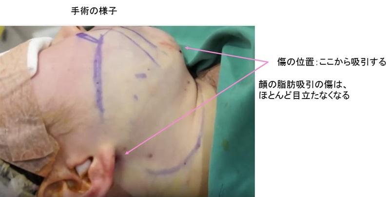 顔 脂肪吸引 手術中