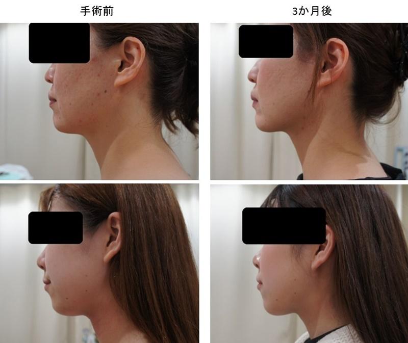 顔の脂肪吸引 効果2