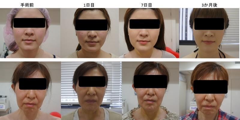 顔の脂肪吸引 経過