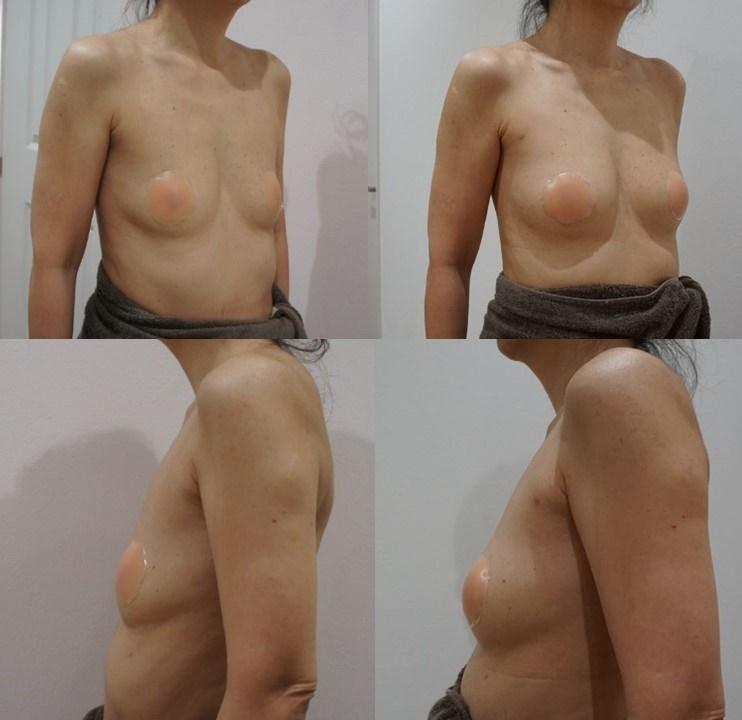 脂肪注入豊胸