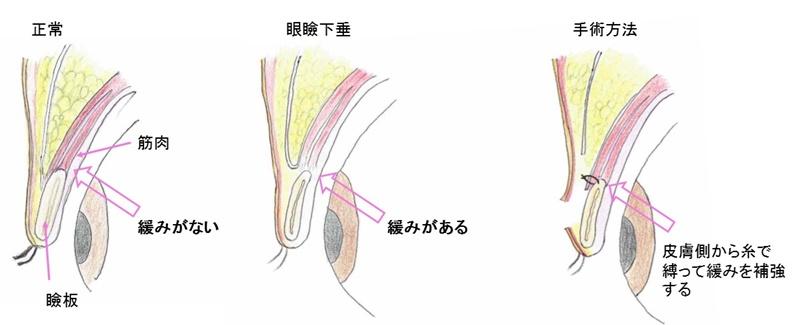 眼瞼下垂 手術