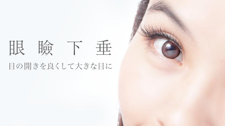 眼瞼下垂|目の開きを良くして大きな目に