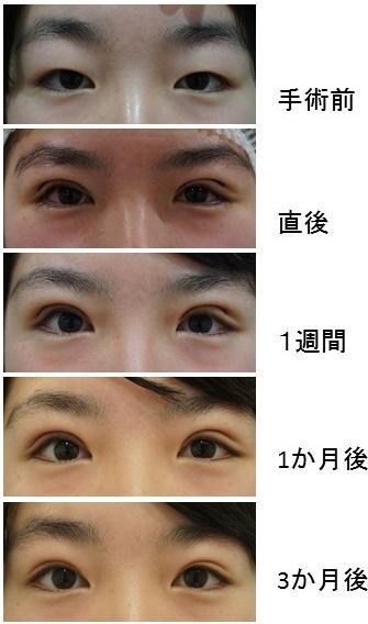 眼瞼下垂のダウンタイムと長引かせない5つのポイント