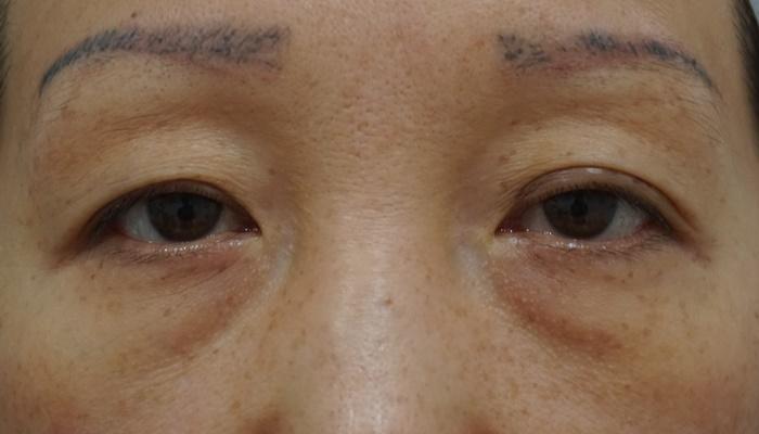目の下 腫れ 痛い